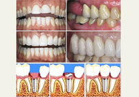 Esthetics in Dentistry & Dental Implant